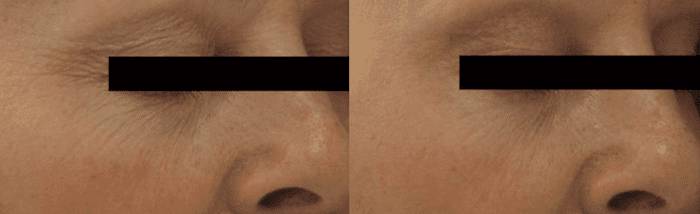 Laser Genesis Before & After Photo
