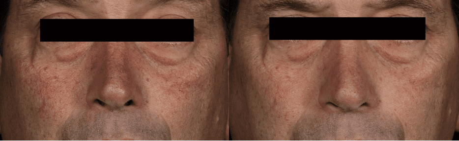 Laser Vein Treatment Before And After Photo