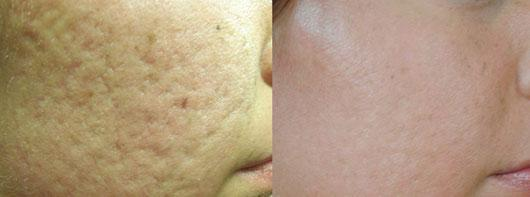 Pearl Fractional Laser Before & After Photo