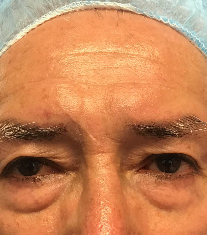 Blepharoplasty Before & After Image