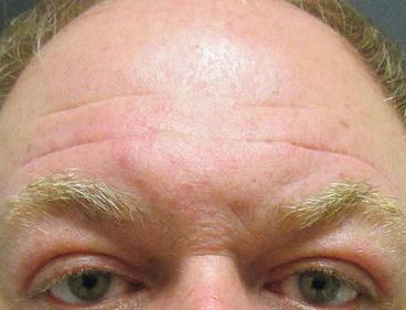 Brow Lift Before & After Image