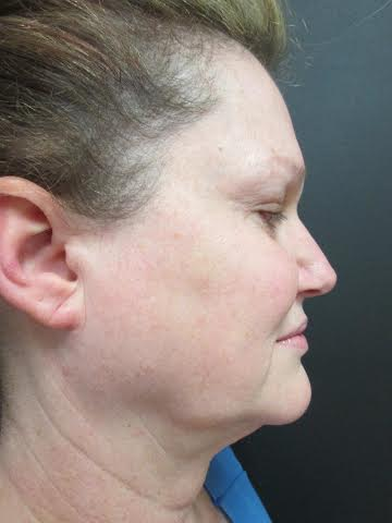 Mak Lift Face Lift Before & After Image