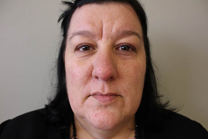 Dermal Filler Before & After Image