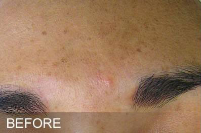 Hydrafacial Before & After Image
