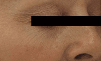 Laser Genesis Before & After Image