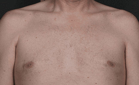 Laser Hair Removal Before & After Image