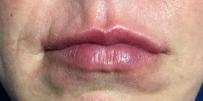 Lip Filler Before & After Image
