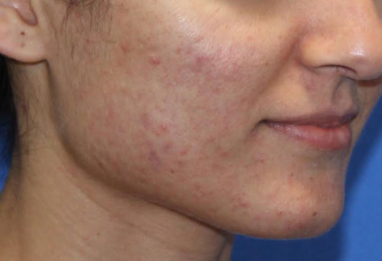 Microneedling Before & After Image