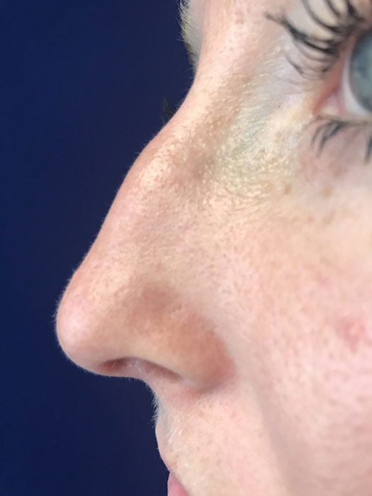 Non-surgical Rhinoplasty Before & After Image