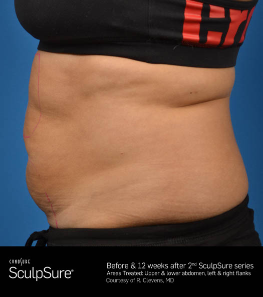 Sculpsure Before & After Image