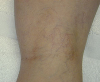 Vein Therapy Before & After Image